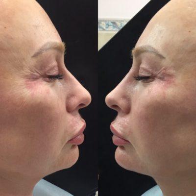 Коррекция формы носа филлером 9