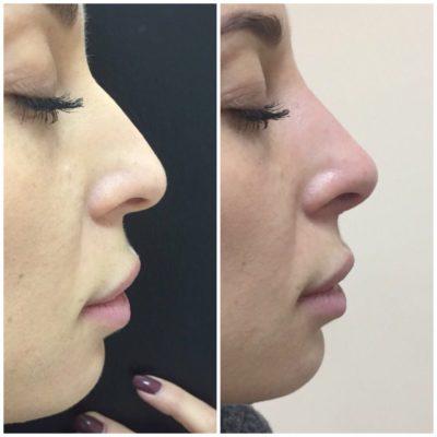 Коррекция формы носа филлером 10