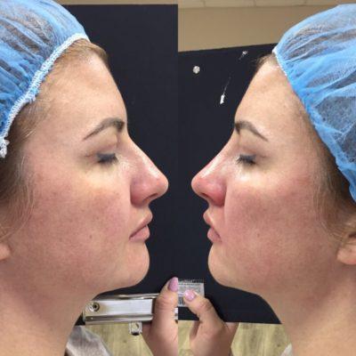 Коррекция формы носа филлерами 11