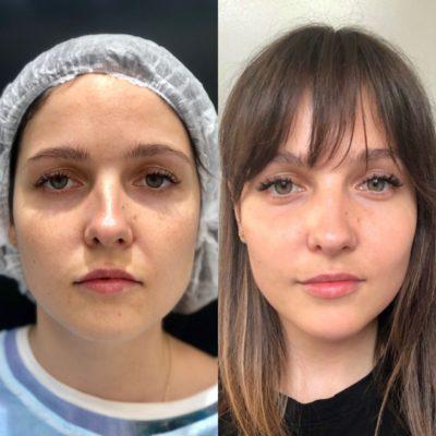 Объемное моделирование лица 58
