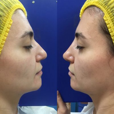 Коррекция формы носа филлером 12