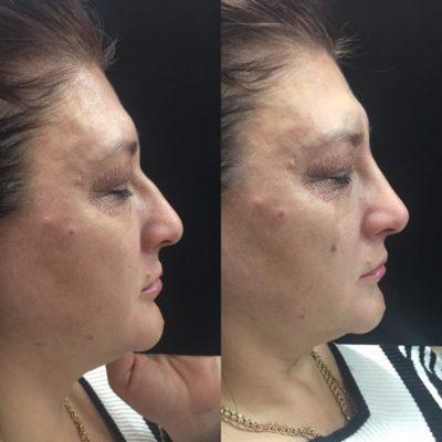 Коррекция формы носа филлером 13