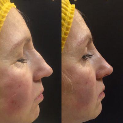 Коррекция формы носа филлером 14