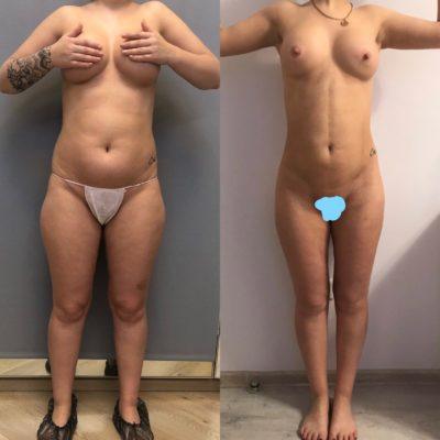 Пластика кожи и мышц живота после родов 12
