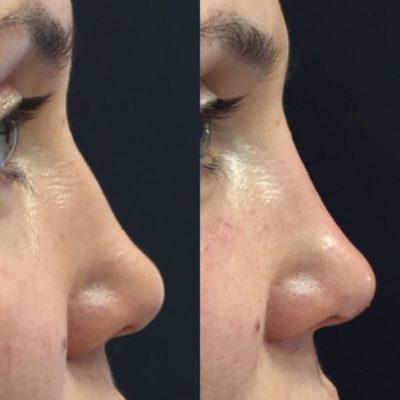 Коррекция формы носа филлером 17