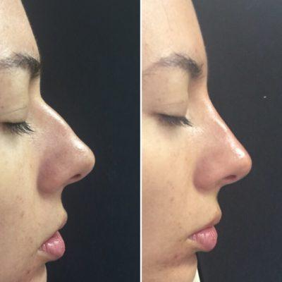 Коррекция формы носа филлером 18