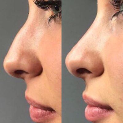 Коррекция формы носа филлером 19