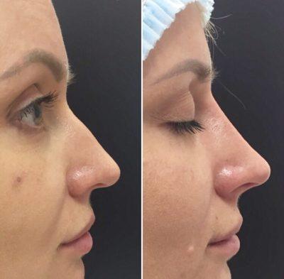 Коррекция формы носа филлерами 20