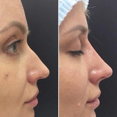 Коррекция формы носа филлером 20