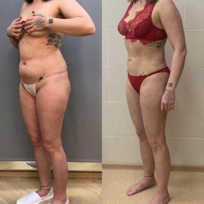 Пластика кожи и мышц живота после родов 13