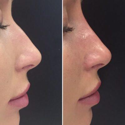 Коррекция формы носа филлером 21
