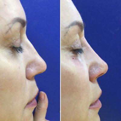 Коррекция формы носа филлером 22