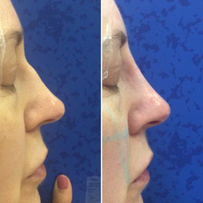 Коррекция формы носа филлером 23
