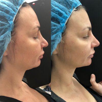 Коррекция формы носа филлером 24