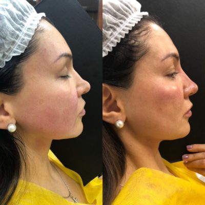 Коррекция формы носа филлером 25