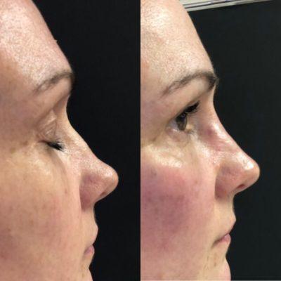 Коррекция формы носа филлером 26