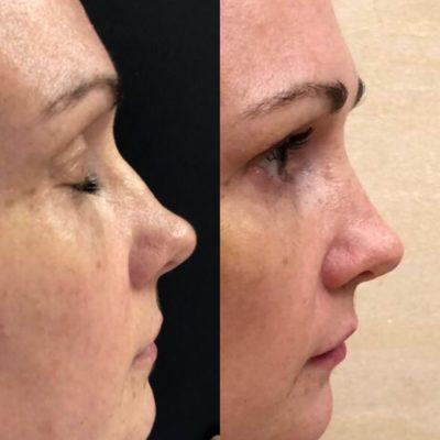 Коррекция формы носа филлером 27