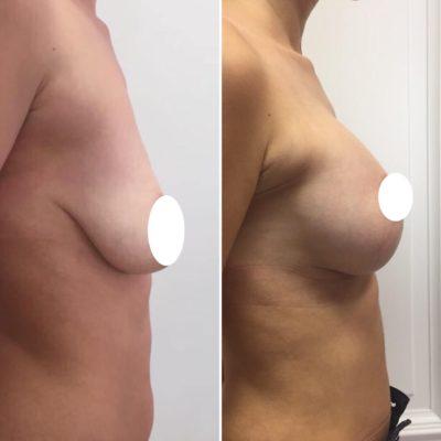 Имплантация груди 23