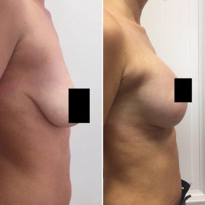 Коррекция груди после родов с превосходным результатом 14