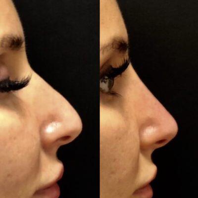 Коррекция формы носа филлером 28