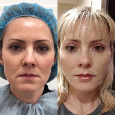 Подтяжка лица без операции 31