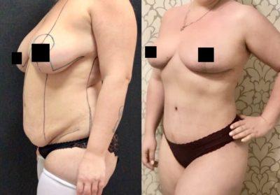 Пластика груди и живота после родов 1