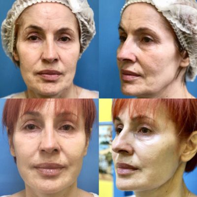 Подтяжка лица без операции 33