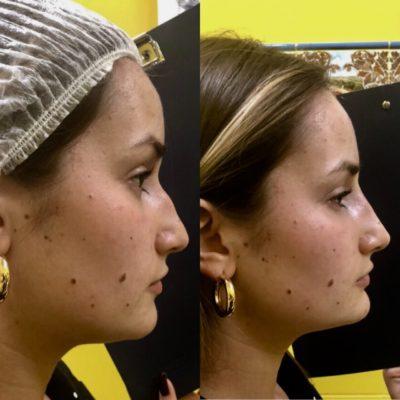 Коррекция формы носа филлером 29
