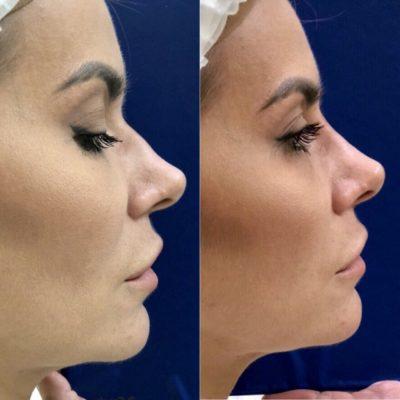 Коррекция формы носа филлером 30