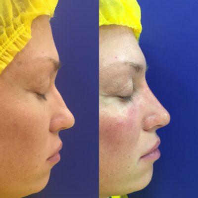 Коррекция формы носа филлером 31