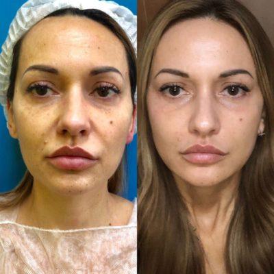 Подтяжка лица без операции 35