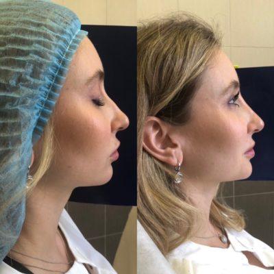 Коррекция формы носа филлером 32