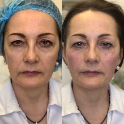 Объемное моделирование лица 70