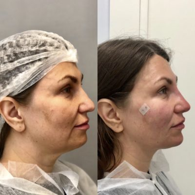 Подтяжка лица без операции 28