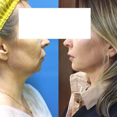 Подтяжка лица без операции 27