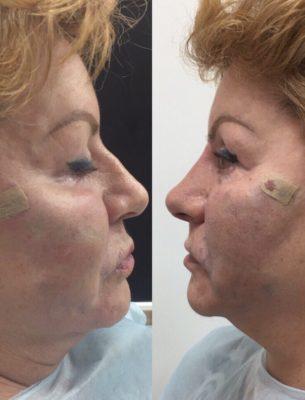 Коррекция формы носа филлерами 33