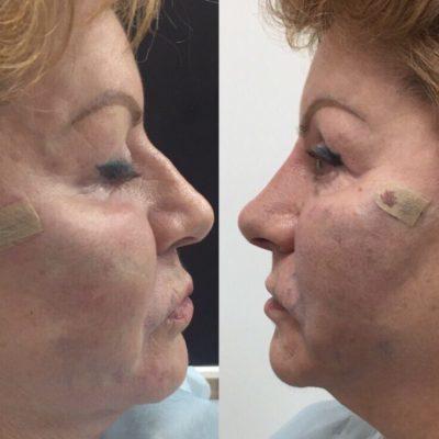 Коррекция формы носа филлером 33