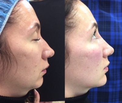 Коррекция формы носа филлерами 34
