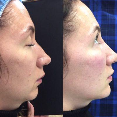 Коррекция формы носа филлером 34