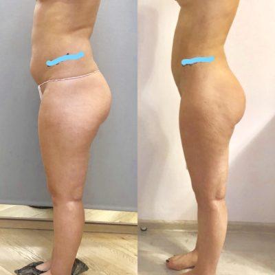 Пластика кожи и мышц живота после родов 19