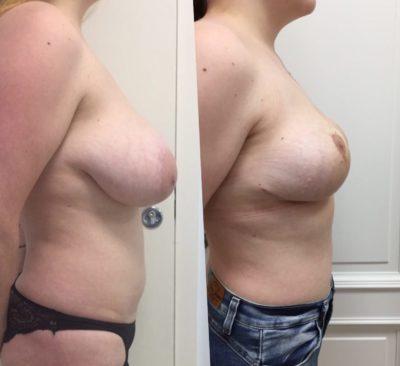 Пластика груди и живота после родов 8