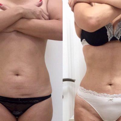 Body Tite 25