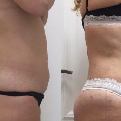 Body Tite 26