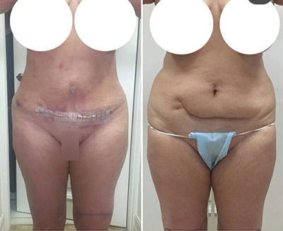 Пластика груди и живота после родов 11