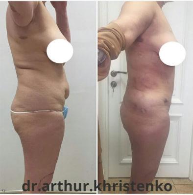 Пластика груди и живота после родов 12