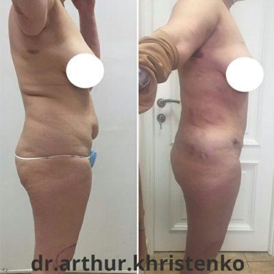 Липоскульптура тела по доступной цене 5