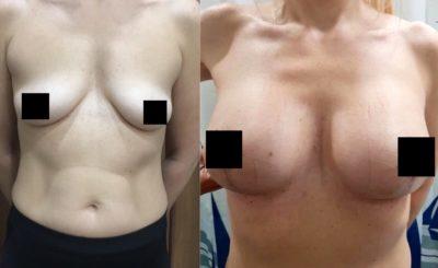 Коррекция груди после родов 9