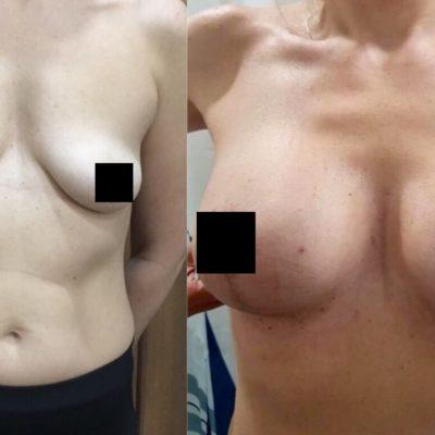 Коррекция груди после родов с превосходным результатом 9