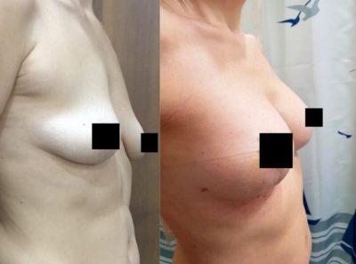 Коррекция груди после родов 10