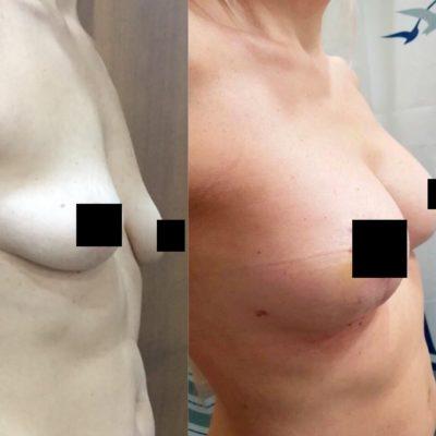 Коррекция груди после родов с превосходным результатом 10